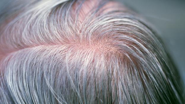 كيفية زيادة الميلانين في الشعر بشكل طبيعي