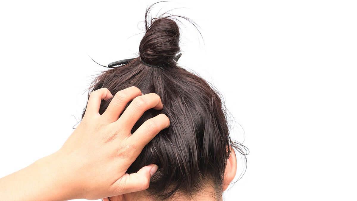 جميع أسباب أسباب حساسية فروة الرأس الطبية ش ع ر كوم